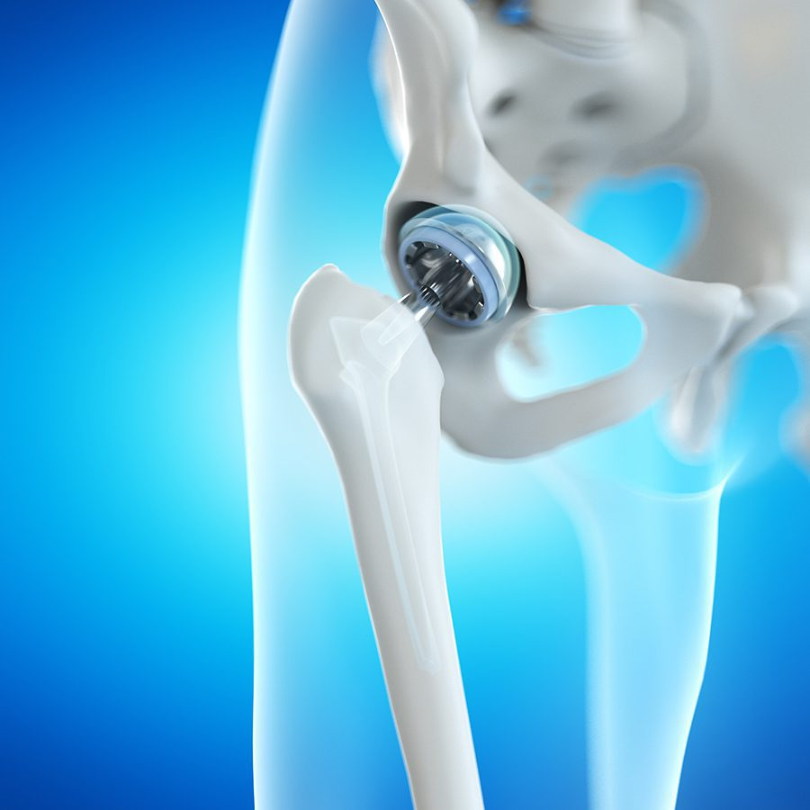 Cost of a total hip replacement